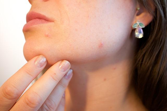 Des routines beauté pour traiter l'acné