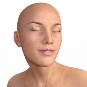 Femme chauve qui a perdu ses cheveux suite cancer